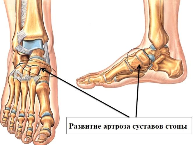 a láb ízületeinek deformáló artrózisa kenőcs térdízületeknél