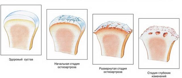 a láb ízületeinek deformáló osteoarthrosis-kezelése