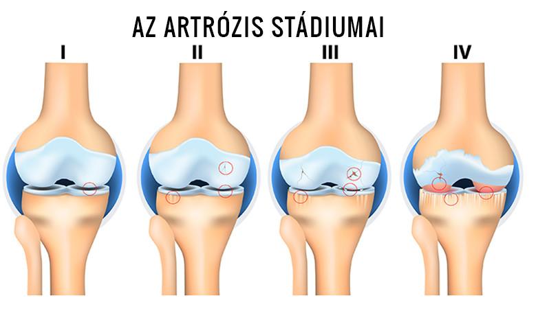 a térd artrózisának radiológiai stádiumai