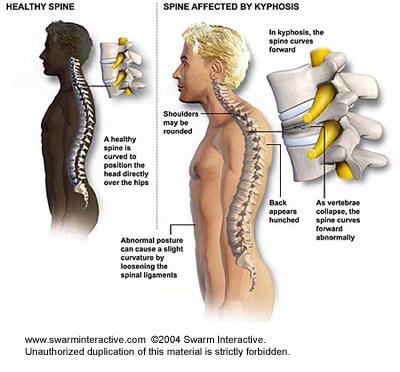 lumbalis lordosis gyógyítása lábujj ízületi fájdalomkezelés