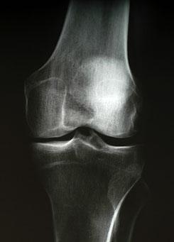 a lábak ízületi duzzadása miatt