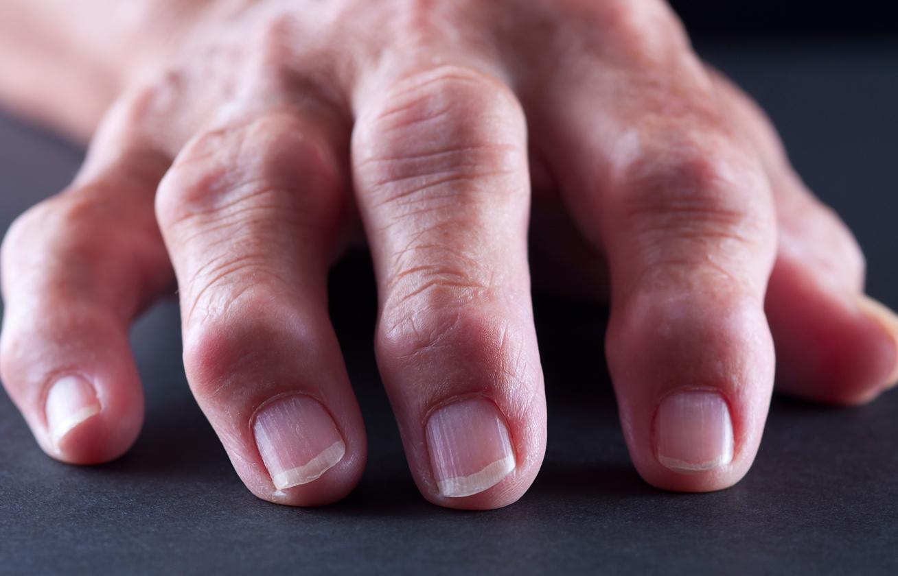 az ujjak ízületi gyulladása elsősegély