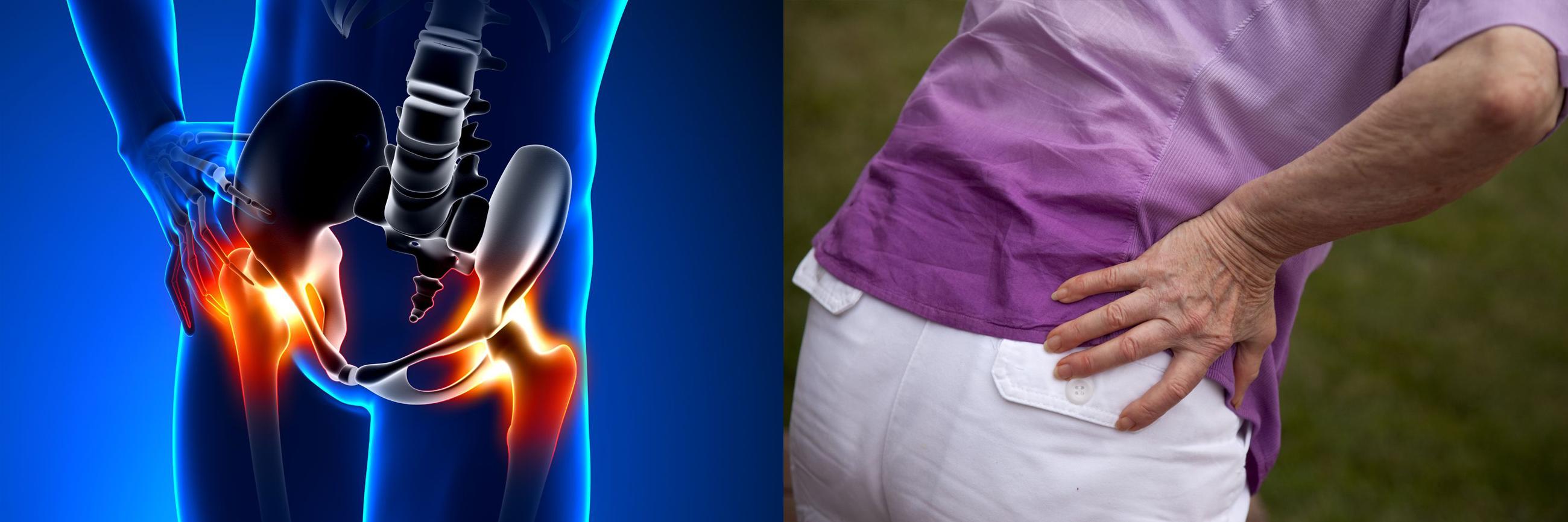 a csípőízület fájdalma okozza és