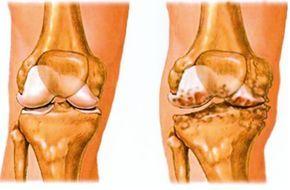 riasarthrosis arthrosis a hüvelykujj tünetek kezelése