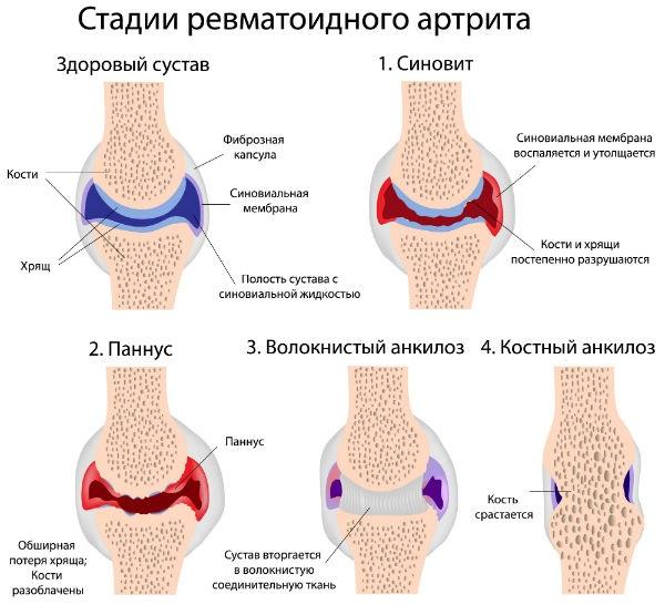a láb ízületeinek deformáló artrózisa súlyos ízületi fájdalom megfázás után