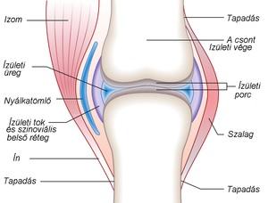 Csípőízülei Arthrosis   Blausen Medical