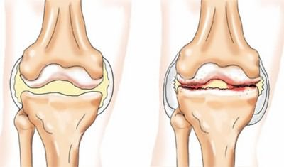 csípőízületek fájnak