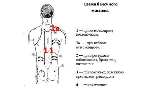 mi a csípőízületek artrózisa