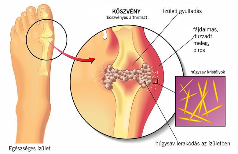 kórtörténet térd osteoarthritis