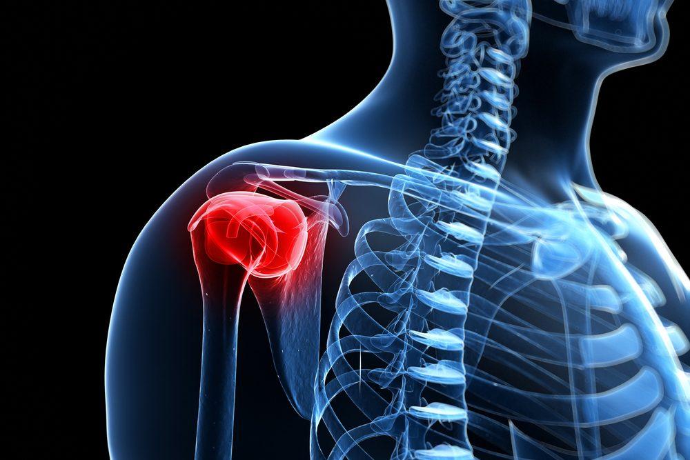 A vállfájdalom okai, típusai és a vállfájás kezelési lehőségei - Vállcentrum