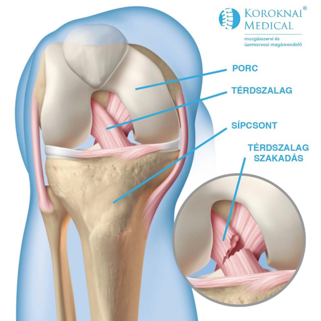 összeroppant térd fájdalommal duzzadó ízületi fájdalom a lábujjon