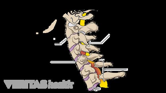 osteoarthritis neck symptoms