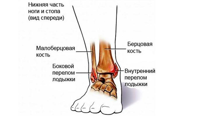 A boka rándulásának okai és tünetei, a modern kezelési módszerek - Osteoarthritis