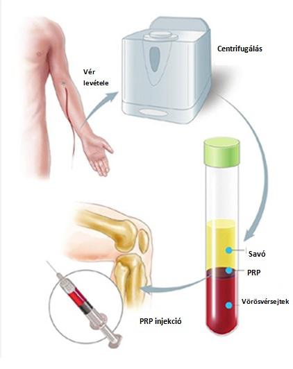 Ízületi injekciókról általában   felsomatraiskola.huán István ortopéd sebész praxisa